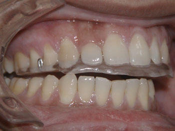 How can one stop teeth grinding (bruxism)?