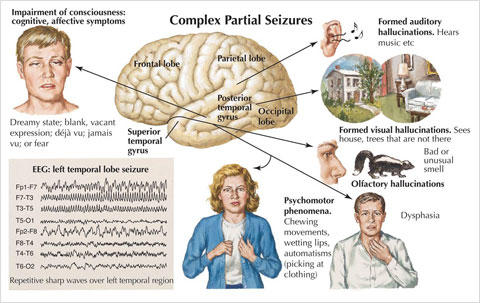 How To Detect Silent Seizures In Children With Autism ... Epilepsy Seizure Symptoms