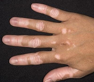 Hoe does one get vitiligo. Can you get it age 40. Where does it come from. I have a small patch on my fingers. Will it spread.?