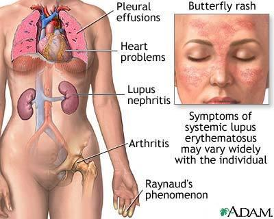 What are the symptoms and treatments for lupus?