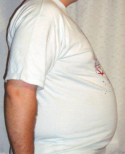 How is metabolic syndrome treated?