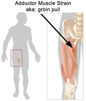 I am concerned about a DVT in the groin.  I am having significant pain on the inner groin on one side (no matter what I am doing). No injury.?
