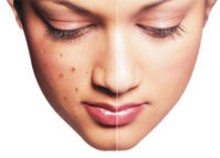 What is the best way to get rid of pimples or zits without creams and wash?
