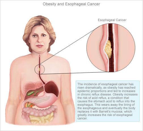 Can you cure esophageal cancer?
