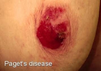 What are the symptoms of paget's disease of the nipple on a male?