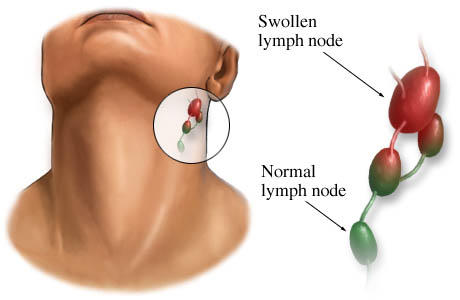 What could cause swollen glands without sickness?