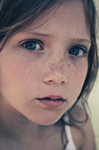 Are new freckles a sign of cancer?
