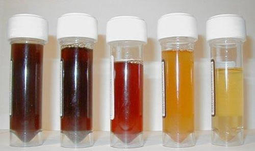 How can I identify blood in the urine?