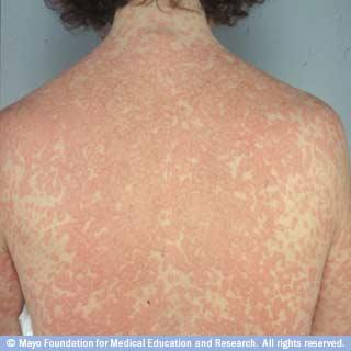 How do cure a skin rash?