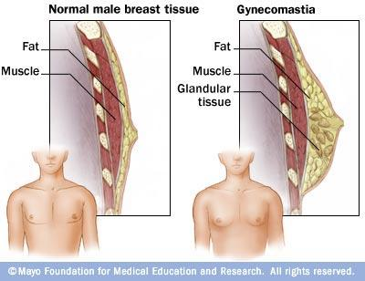 Do chubby boys get pubertal gynecomastia?