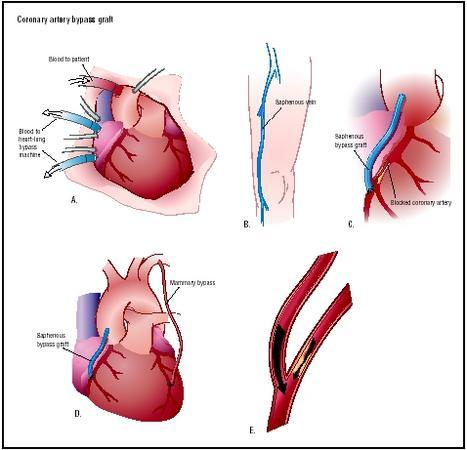 I am going to have a 4 heart by pass. (i am female 60 years old) I had a mild heart attack a month ago. They put a stent in they say there are many narrowing in all the vessels. So they feel I need this by pass, my question is the clogged arteries that wi