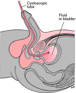 What does a cystoscopy feel like?