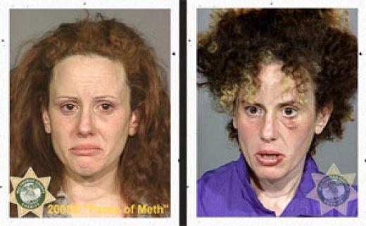 What are the symptoms of a meth addiction?