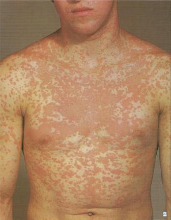Clindamycin side affects