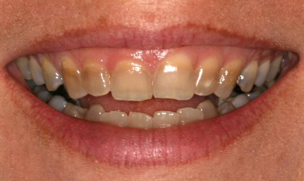 How long does it take for tetracycline to stain your teeth?