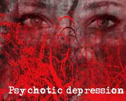 What is the best way to cure catatonic and psychotic depression?