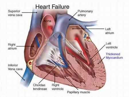 What is the purpose of spironolactone in congestive heart failure?
