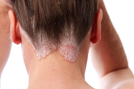 What are some treatments for scalp psoriasis?