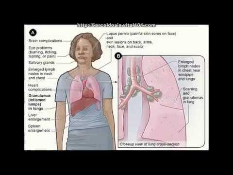 What is respiratory sarcoidosis?
