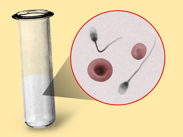 What does it mean if you have blood in your sperm regularly?