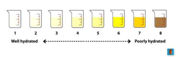 Why should I drink water when my urine is yellow?