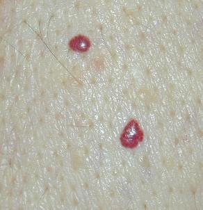 I have raised blood spots on my skin. What are they?