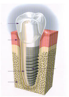 A dental implant is an artificial tooth but is there fake bone with it?