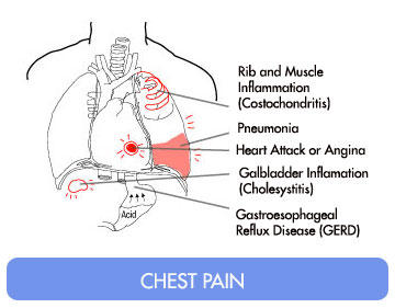 What does it mean to constrict chest pain to the upper right of the chest?
