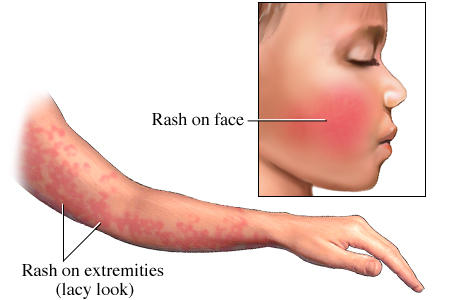 Causes of Itchy Skin and Non-Itchy Skin Rash - Health Hype