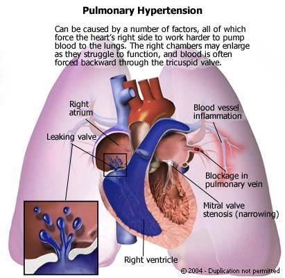 How do u know if u have pulmonary hypertension from phintermine?