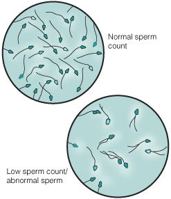 How does a fertility clinic get your sperm sample?