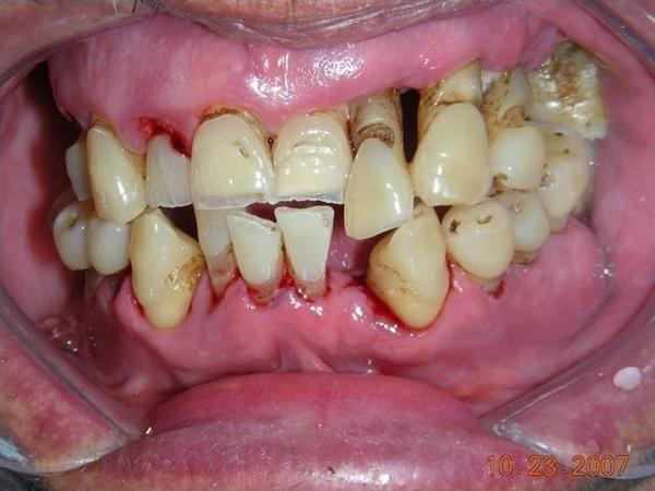 What's the best way to get rid if tartar from teeth but at home?