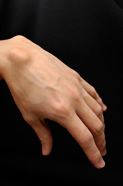 Ganglion cyst what cause them to happen?