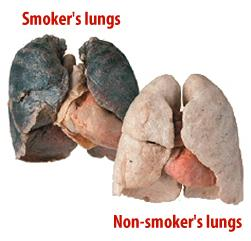 What is the difference between active lung disease. Lung injury?