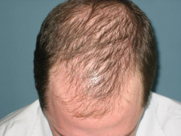 High testosterone levels and high thyriod will it cause skin breakout and hairloss?