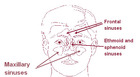 Visual changes Eye health Vision Sinusitis NaSal Eye Nose Forehead Infection Sinus Skin Urinary urgency Pain Sinus pain