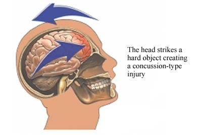 4 concussions on the same spot .Its been 4 yrs from the last 1 n I still have my concussion bump on my head n my memory is getting worse. Is this bad?