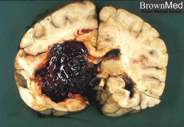 What can I do to address a brain haemorrhage?