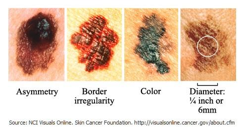 Is it common that breast cancer metastisize in the skin? What are signs of skin cancer?