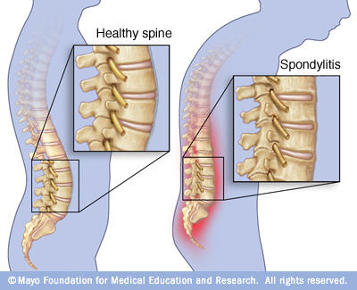What is ankylosing spondylitis , what are the causes and cure?
