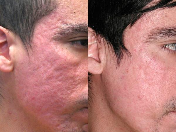 How can I help a patient with scars from seborhhic dermattis?