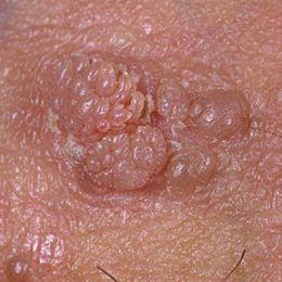 How do I get rid of genital warts?