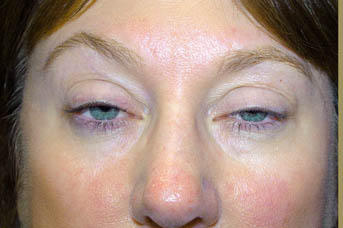 What can be the reason of heaviness in head and eyes after botox application and when will it subside?