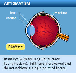 How can I get cosmetic lenses for astigmatism?