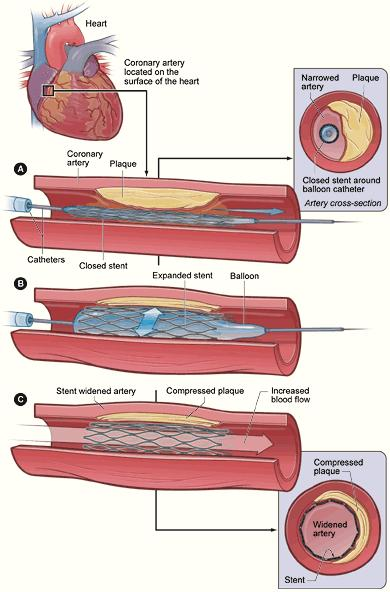 If I had a stent put in my coronary atery does that mean I have a heart diisease?