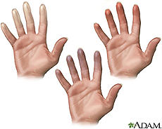 When ever it is really cold and im not wearing gloves, my hands turn red they swell and hurt very bad what is this?