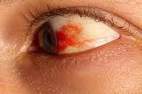 I have a blood shot eye .I am not in pain. What is the best treatment or do I need to see  a doctor?