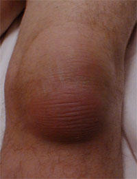 I have a large bump in my left knee and it hurts what is it?