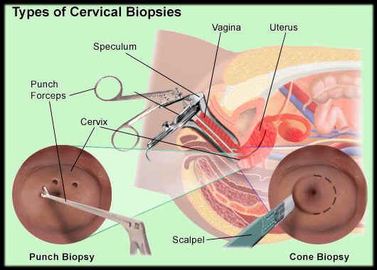 Гистероскопия с биопсией эндометрия