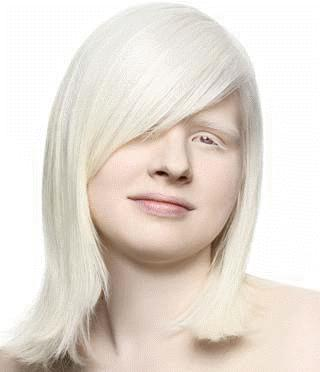 How can I stop my hair from turning white if i'm albino?